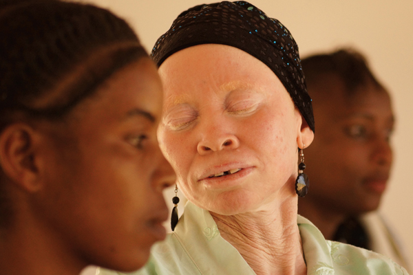 Tanzanian Albinism Collective